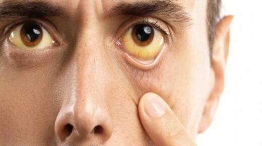 هذه هى أسباب اصفرار العين