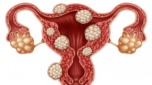 ننشر كل ما تريد معرفته عن مرض تكيسات المبايض لدى النساء .. الاعراض وطرق العلاج